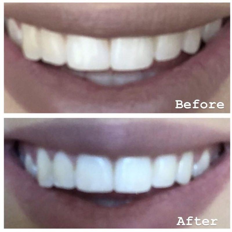 GloWhiter Teeth Whitening Kit Before & After Kayla